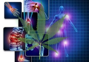 Fibromyalgia. Fibromyalgia and Weed.
