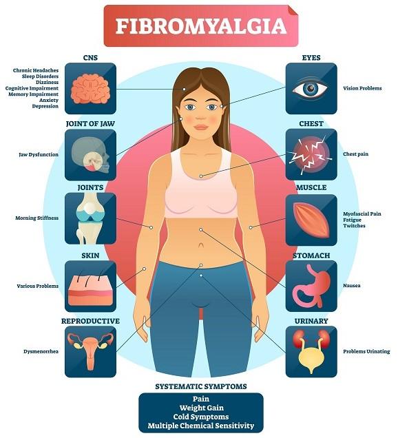 5 best strains for fibromyalgia, fibromyalgia and weed, best strains for fibromyalgia